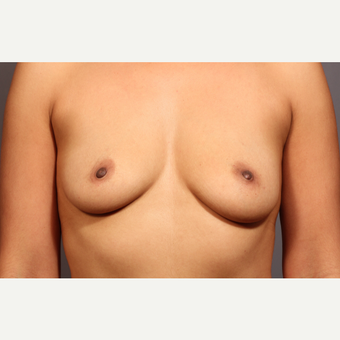 35-44 year old woman treated with Breast Augmentation before 3319806