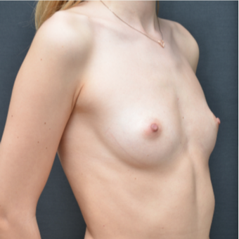 18-24 year old woman treated with Breast Augmentation before 3238752