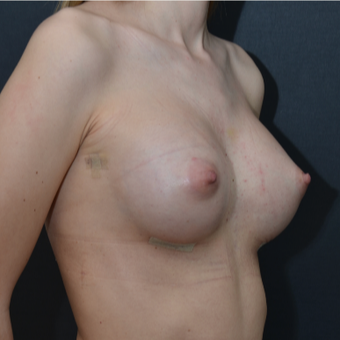 18-24 year old woman treated with Breast Augmentation after 3238752