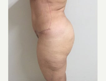 45-54 year old woman treated with Tummy Tuck after 2293233
