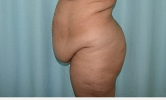 45-54 year old woman treated with Tummy Tuck before 2293233