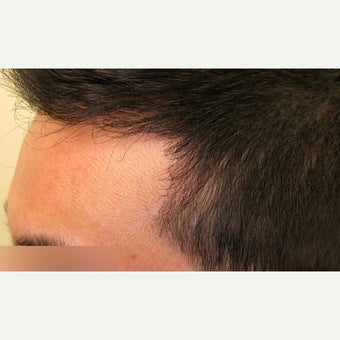 25-34 year old man treated with Forehead Reduction with Hair Transplant after 1973898