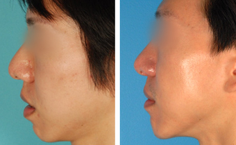 Chin Surgery before 1208037