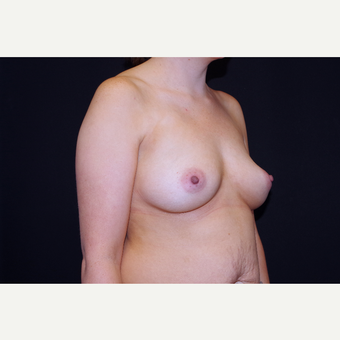 25-34 year old woman treated with Breast Implants before 3741761