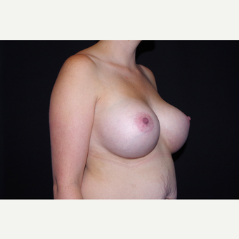 25-34 year old woman treated with Breast Implants after 3741761
