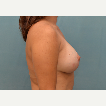 25-34 year old woman treated with Breast Lift with Implants after 3060985