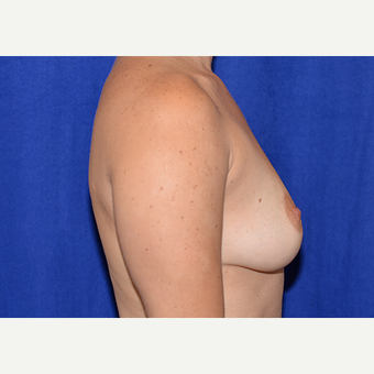 25-34 year old woman treated with Breast Lift with Implants before 3060985