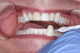 Whitening after 372831