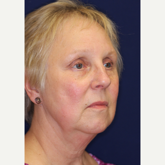 55-64 year old woman treated with Facelift before 3070856