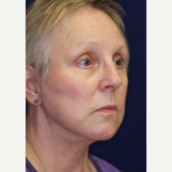 55-64 year old woman treated with Facelift after 3070856