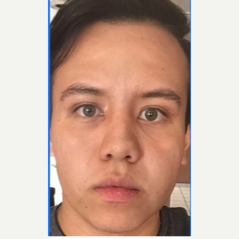 25-34 year old man treated with Facelift after 3776975