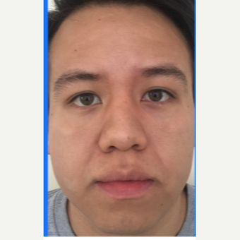 25-34 year old man treated with Facelift before 3776975