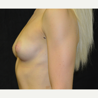 25-34 year old woman treated with Breast Implants before 3418259