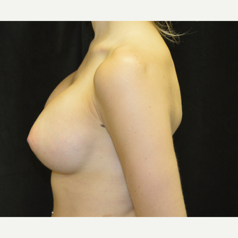 25-34 year old woman treated with Breast Implants after 3418259