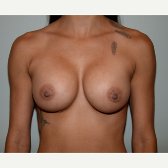 24 year old woman treated with Breast Augmentation after 3103136