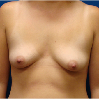 18-24 year old woman treated with Breast Lift with Implants before 3670235