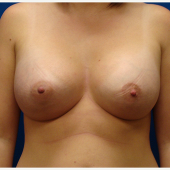 18-24 year old woman treated with Breast Lift with Implants after 3670235