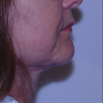 Double chin gone with liposuction alone after 3330939