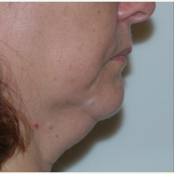 Double chin gone with liposuction alone before 3330939