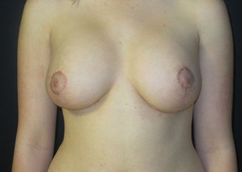 18-24 year old woman treated with Breast Implant Revision after 2988102