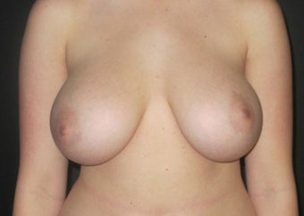 18-24 year old woman treated with Breast Implant Revision before 2988102