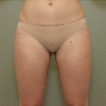 35-44 year old woman treated with CoolSculpting after 3098355
