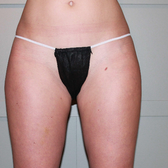 35-44 year old woman treated with CoolSculpting before 3098355