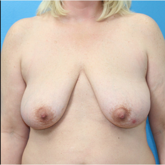 45-54 year old woman treated with Breast Lift with Implants before 3203816