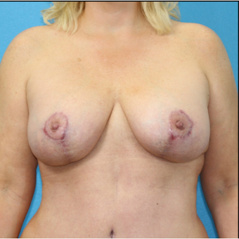 45-54 year old woman treated with Breast Lift with Implants after 3203816