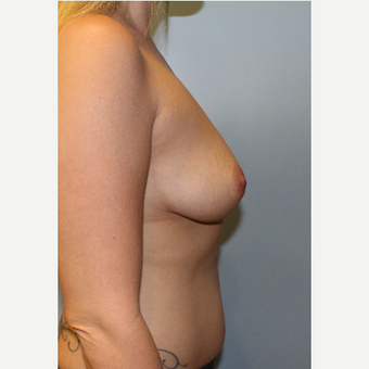 25-34 year old woman treated with Breast Augmentation before 3213690