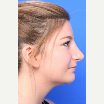 18-24 year old woman treated with Rhinoplasty after 3645364