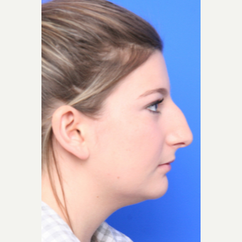 18-24 year old woman treated with Rhinoplasty before 3645364