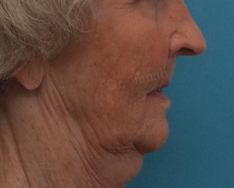Bone grafting to give better support to lips before 1485029