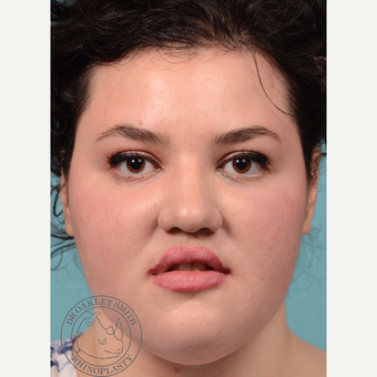 18-24 year old woman treated with open Rhinoplasty and base of nose narrowing before 3092685