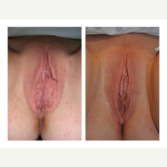 35-44 year old woman treated with Labiaplasty (minora and majora)