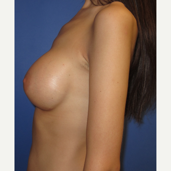 25-34 year old woman treated with Breast Augmentation (371cc) after 3098477