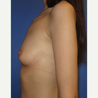 25-34 year old woman treated with Breast Augmentation (371cc) before 3098477