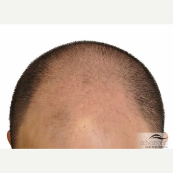 25-34 year old man treated with Hair Transplant before 2097647