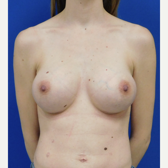 25-34 year old woman treated with Breast Augmentation after 2888693