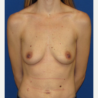 25-34 year old woman treated with Breast Augmentation before 2888693