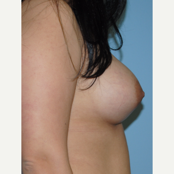 18-24 year old woman treated with Breast Augmentation after 3070744