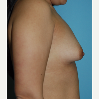 18-24 year old woman treated with Breast Augmentation before 3070744