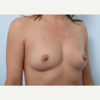 Breast Augmentation before 3459748