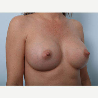 Breast Augmentation after 3459748