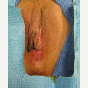 25-34 year old woman treated with Labiaplasty before 2803323