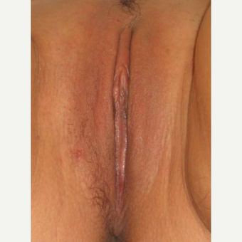 25-34 year old woman treated with Labiaplasty after 2803323