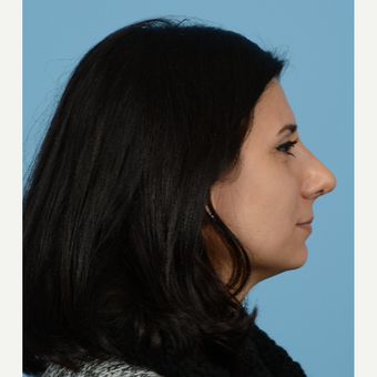 35-44 year old woman treated with Rhinoplasty after 3684739