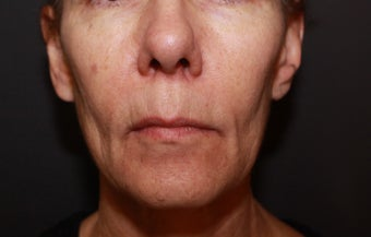 Laser Fractional Resurfacing before 1058272
