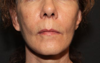 Laser Fractional Resurfacing after 1058272