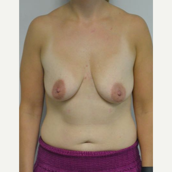 25-34 year old woman treated with Breast Lift with Implants before 3219885